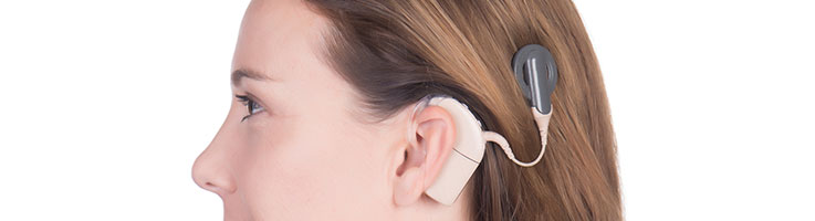 cochlear-implant-large